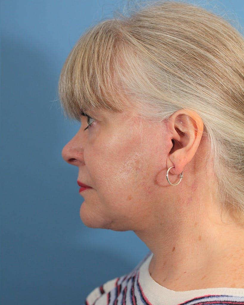 Facelift/Neck Lift Gallery - Patient 48085348 - Image 6