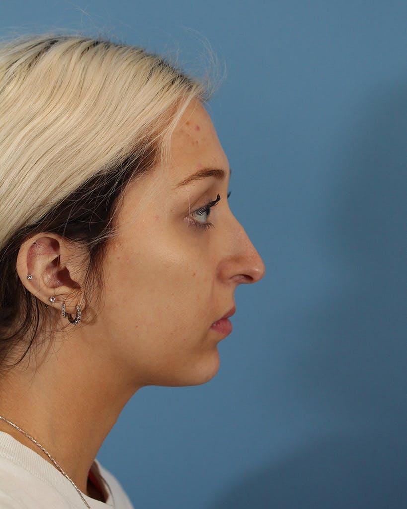 Rhinoplasty Gallery - Patient 51235332 - Image 5