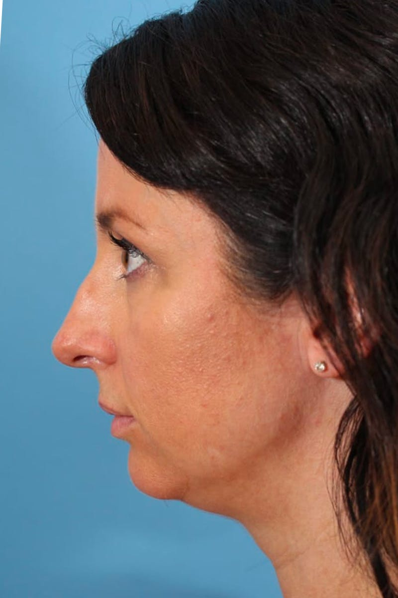 Liposuction Gallery - Patient 53572425 - Image 1