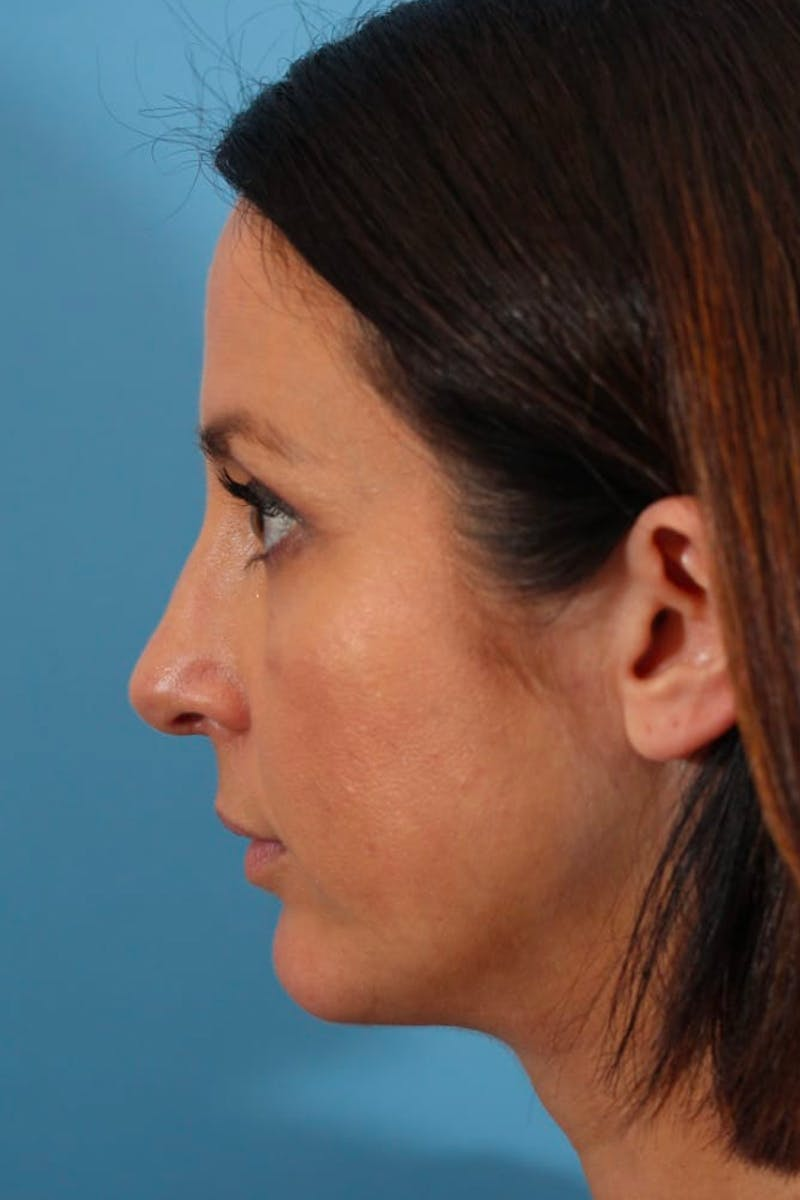 Liposuction Gallery - Patient 53572425 - Image 2
