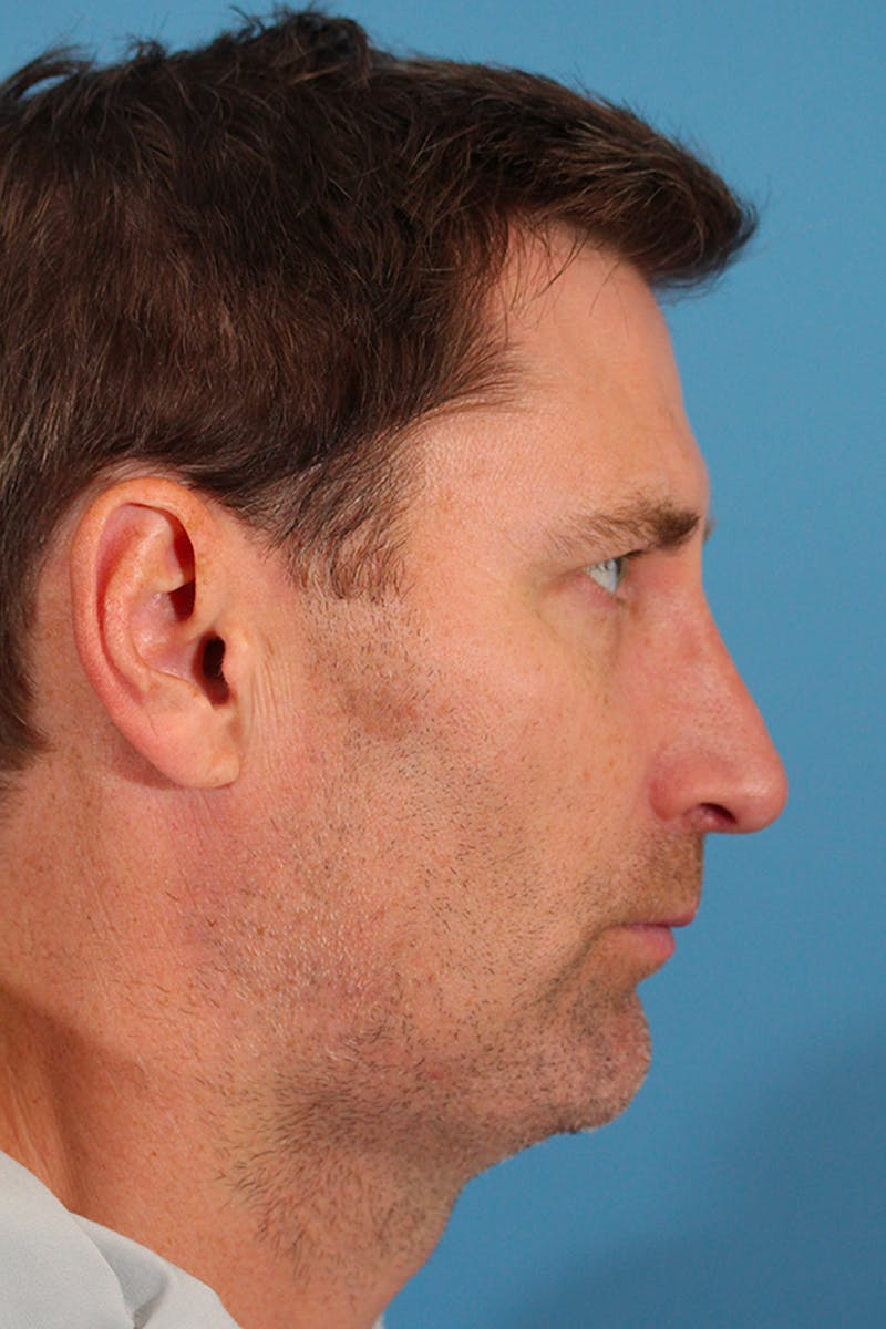Chin Augmentation Gallery - Patient 53572526 - Image 2