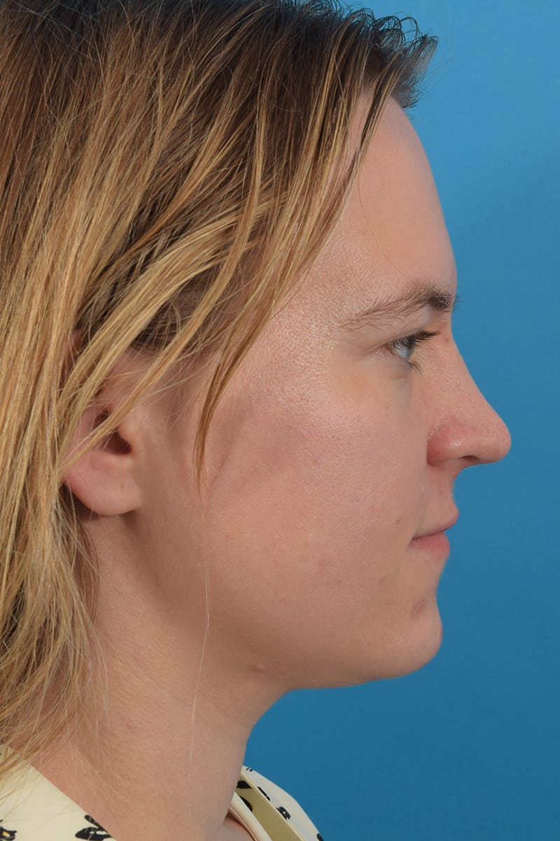Liposuction Gallery - Patient 53572723 - Image 1