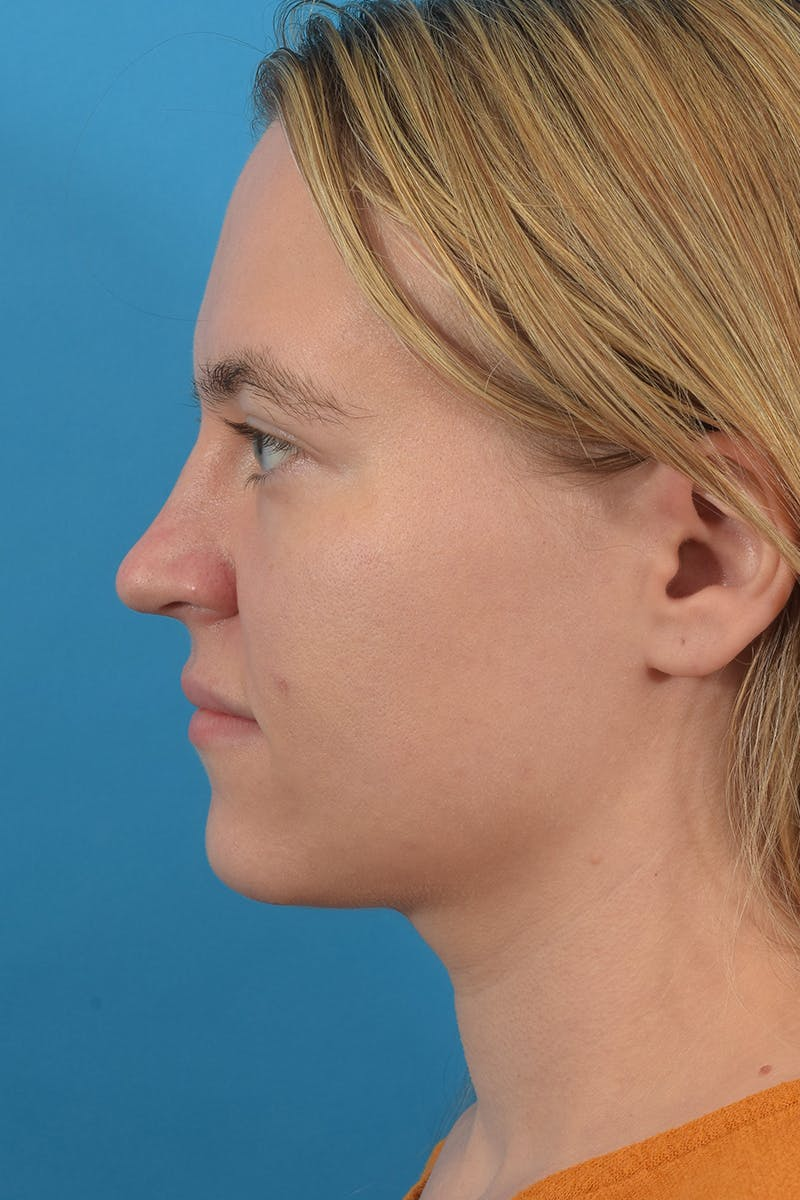 Liposuction Gallery - Patient 53572723 - Image 4