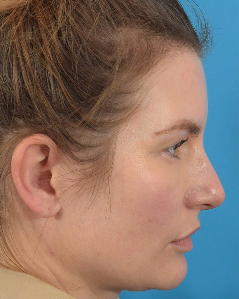 Rhinoplasty Gallery - Patient 62576199 - Image 1