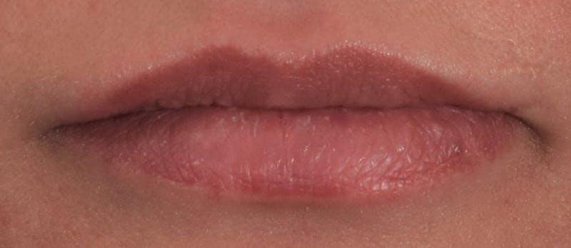 Lip Augmentation  Gallery - Patient 63105090 - Image 2