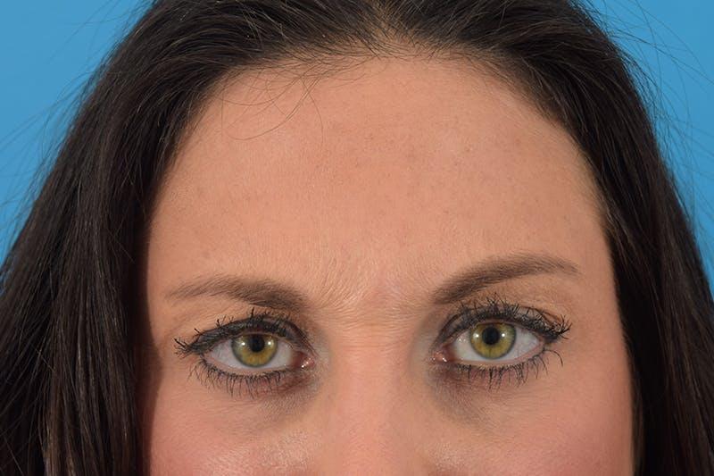Botox Gallery - Patient 66233053 - Image 1