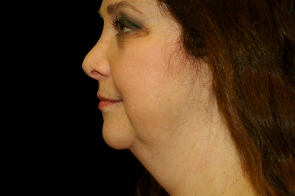 Facelift Gallery - Patient 39174209 - Image 5