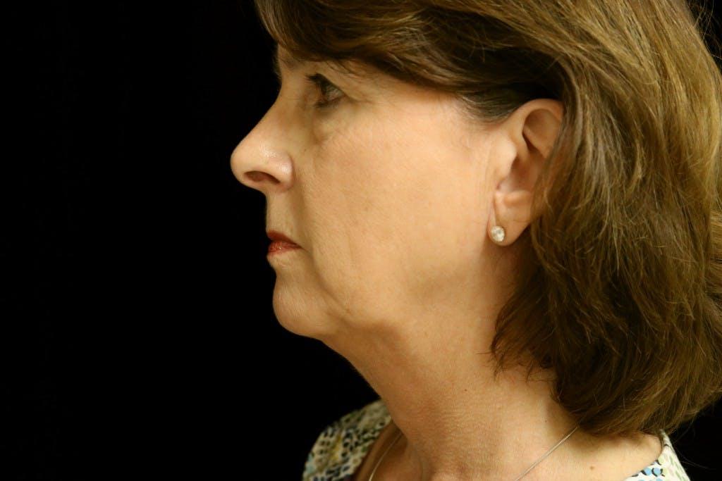 Facelift Gallery - Patient 39182634 - Image 3