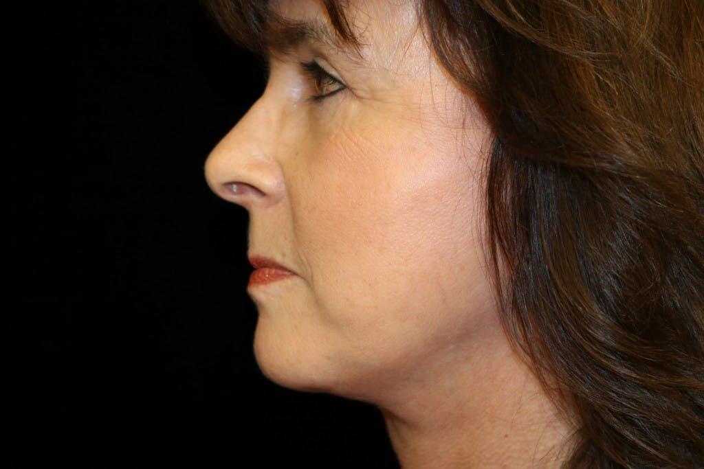 Facelift Gallery - Patient 39182634 - Image 4