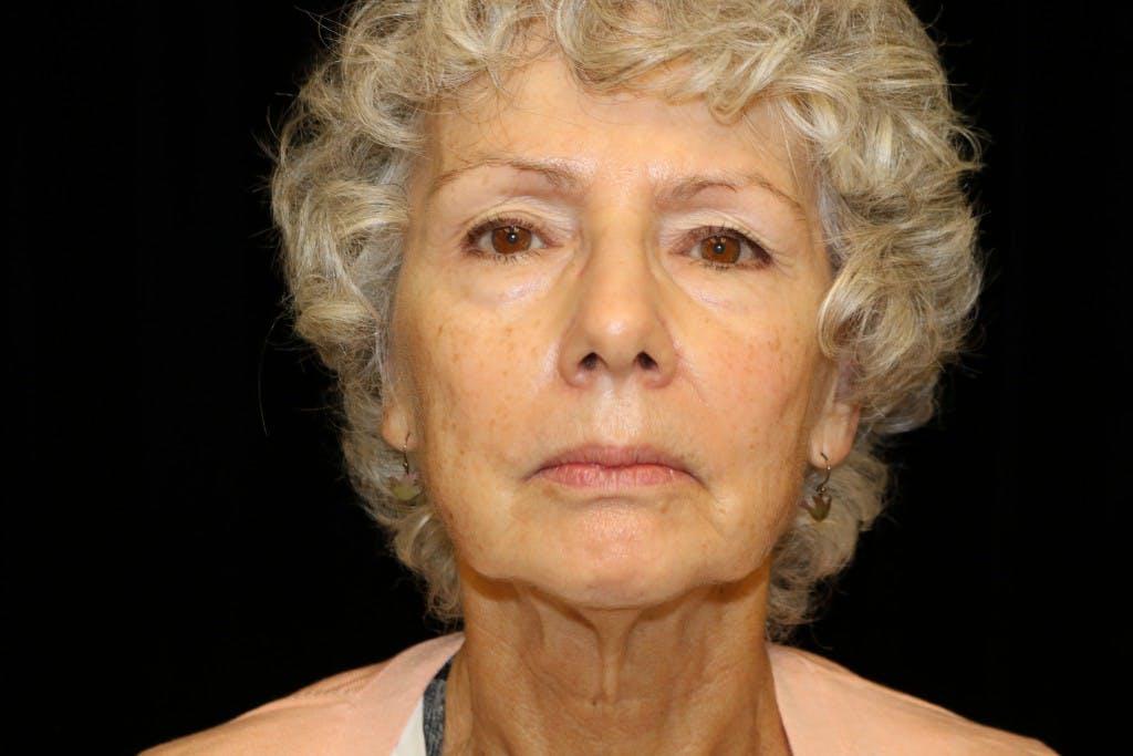 Facelift Gallery - Patient 39182641 - Image 1