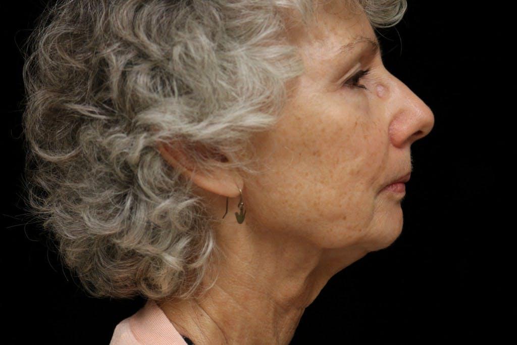 Facelift Gallery - Patient 39182641 - Image 3