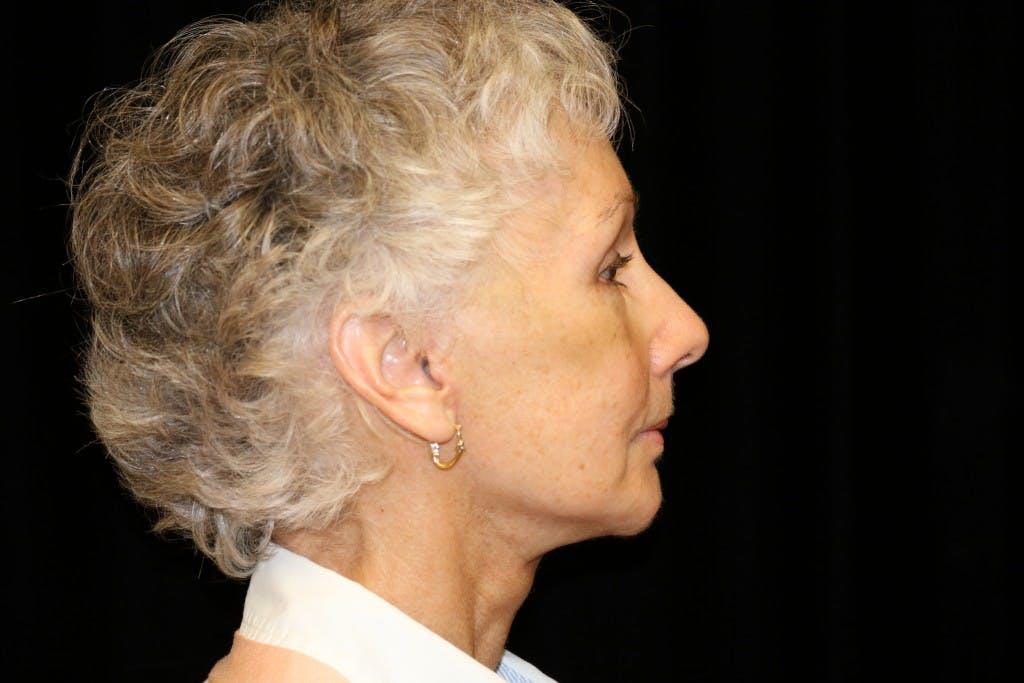 Facelift Gallery - Patient 39182641 - Image 4