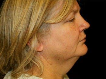 Facelift Gallery - Patient 39182649 - Image 1