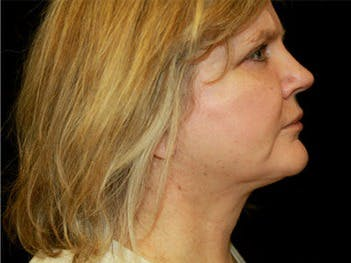 Facelift Gallery - Patient 39182649 - Image 2