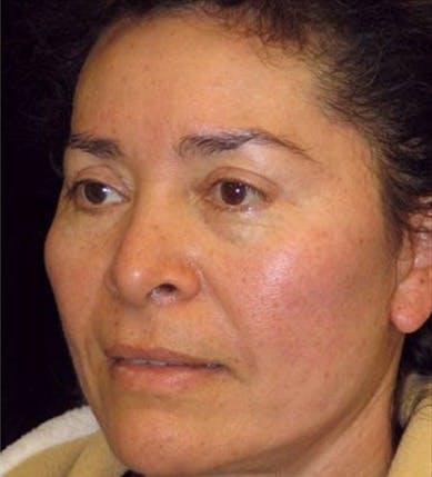 Facelift Gallery - Patient 39182655 - Image 2