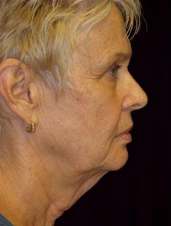 Facelift Gallery - Patient 39182662 - Image 1