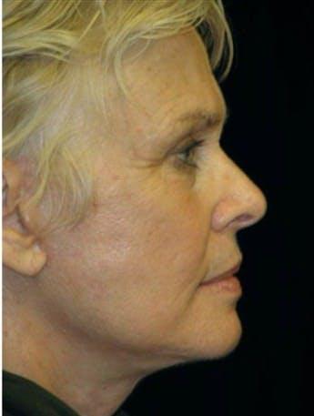 Facelift Gallery - Patient 39182662 - Image 2