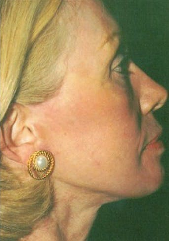 Facelift Gallery - Patient 39182667 - Image 2