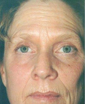 Facelift Gallery - Patient 39182668 - Image 1