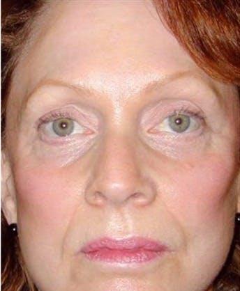 Facelift Gallery - Patient 39182668 - Image 2