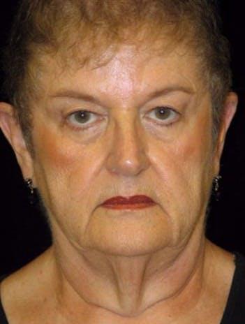 Facelift Gallery - Patient 39182687 - Image 1