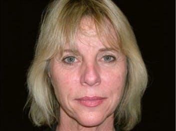 Facelift Gallery - Patient 39182736 - Image 1