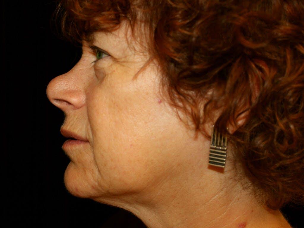Facelift Gallery - Patient 39191189 - Image 3