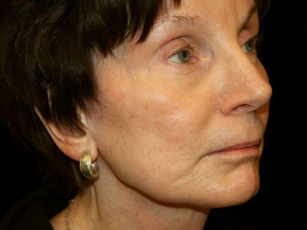 Facelift Gallery - Patient 39191195 - Image 1