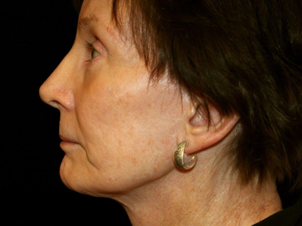 Facelift Gallery - Patient 39191195 - Image 5