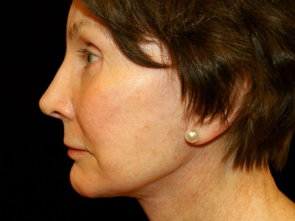 Facelift Gallery - Patient 39191195 - Image 6