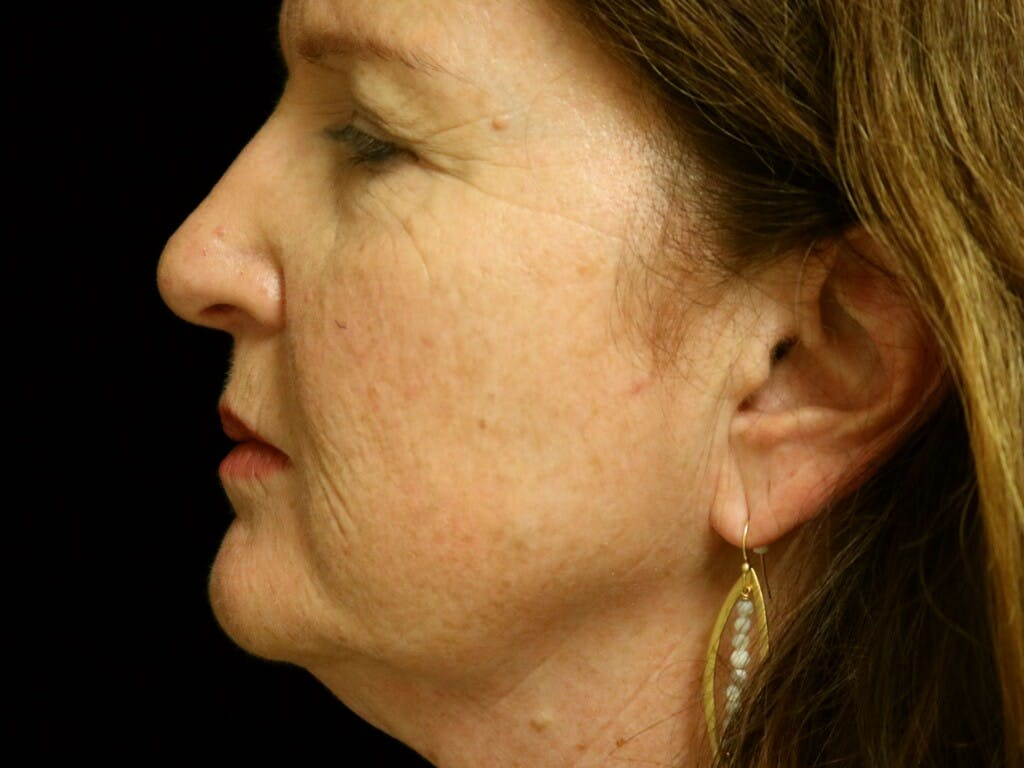 Facelift Gallery - Patient 39191202 - Image 5