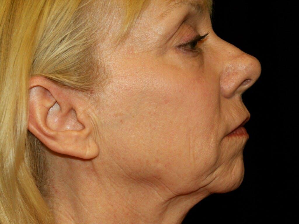 Facelift Gallery - Patient 39191218 - Image 3