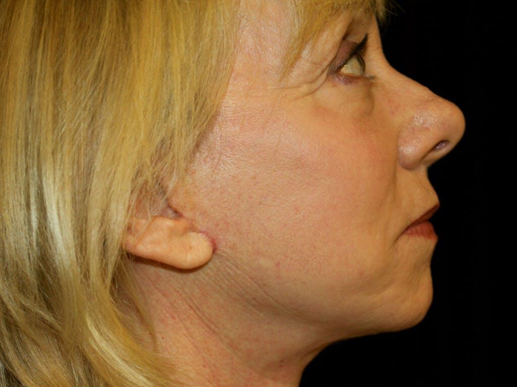 Facelift Gallery - Patient 39191218 - Image 4