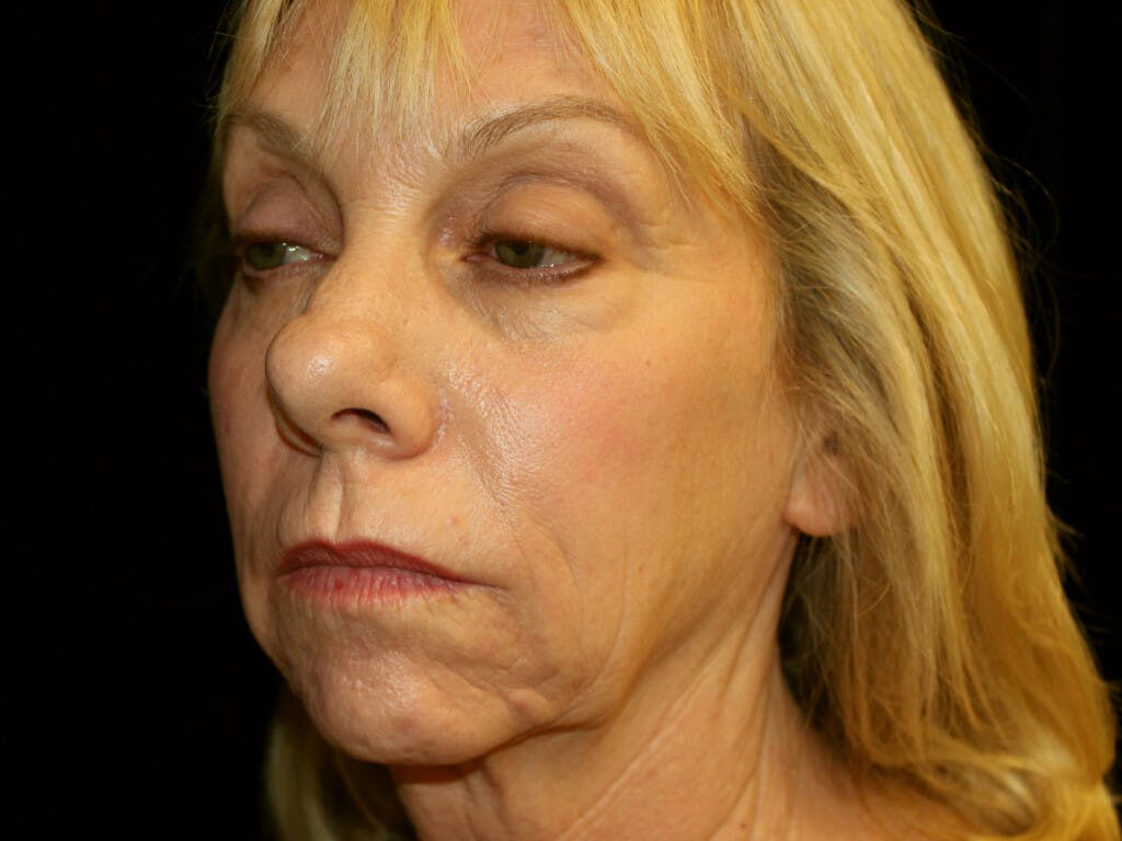 Facelift Gallery - Patient 39191218 - Image 5