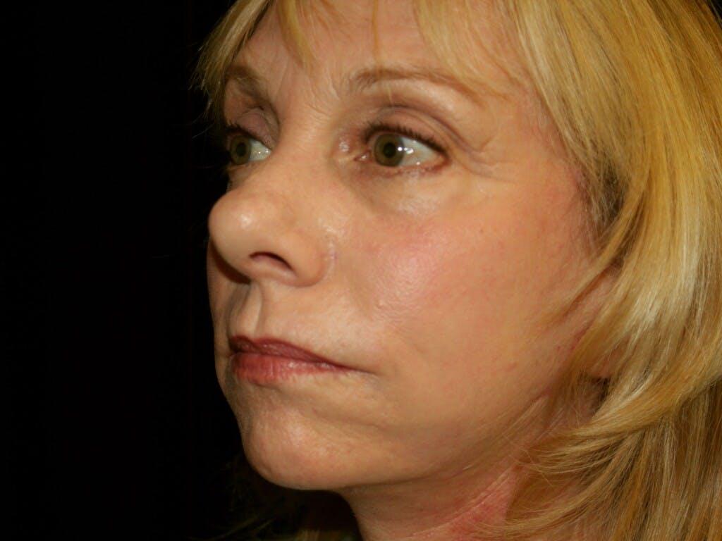 Facelift Gallery - Patient 39191218 - Image 6