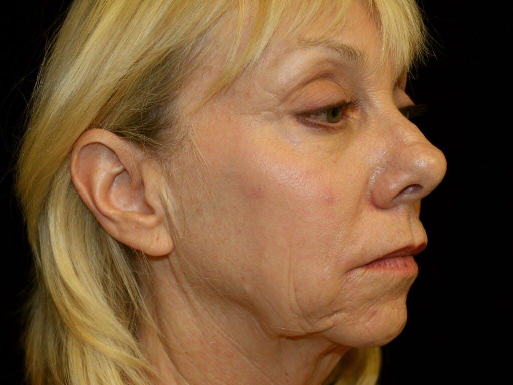 Facelift Gallery - Patient 39191218 - Image 7