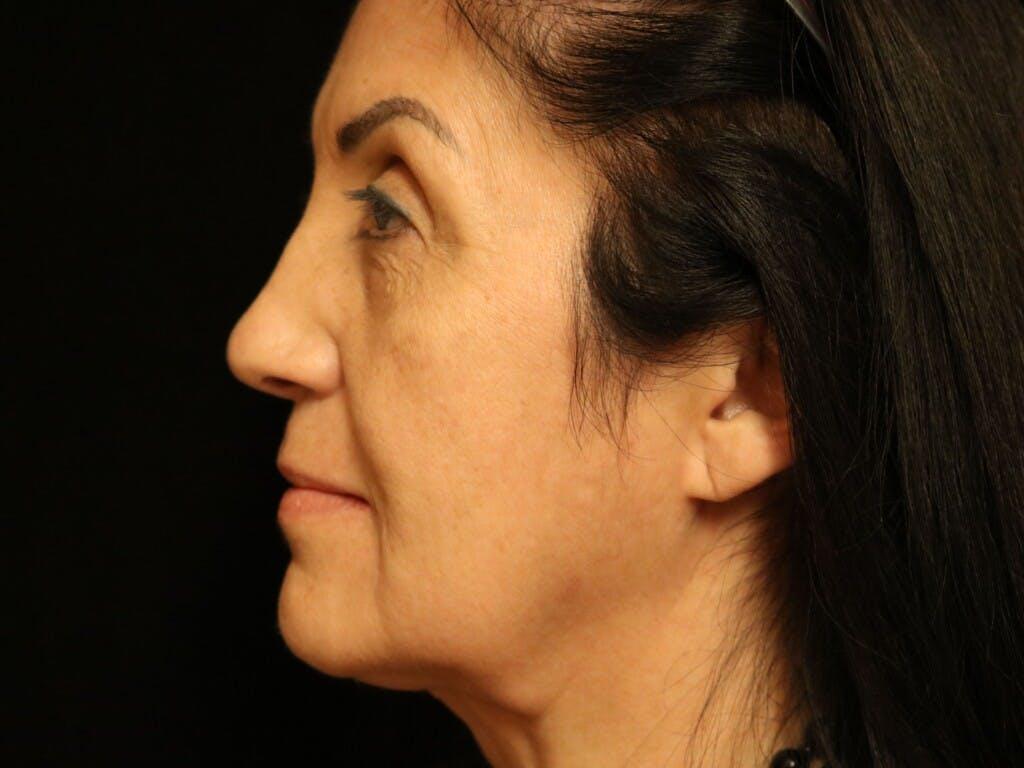 Facelift Gallery - Patient 39191231 - Image 5