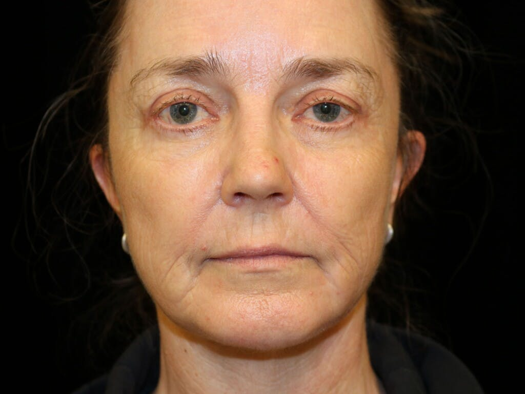 Facelift Gallery - Patient 39191265 - Image 2