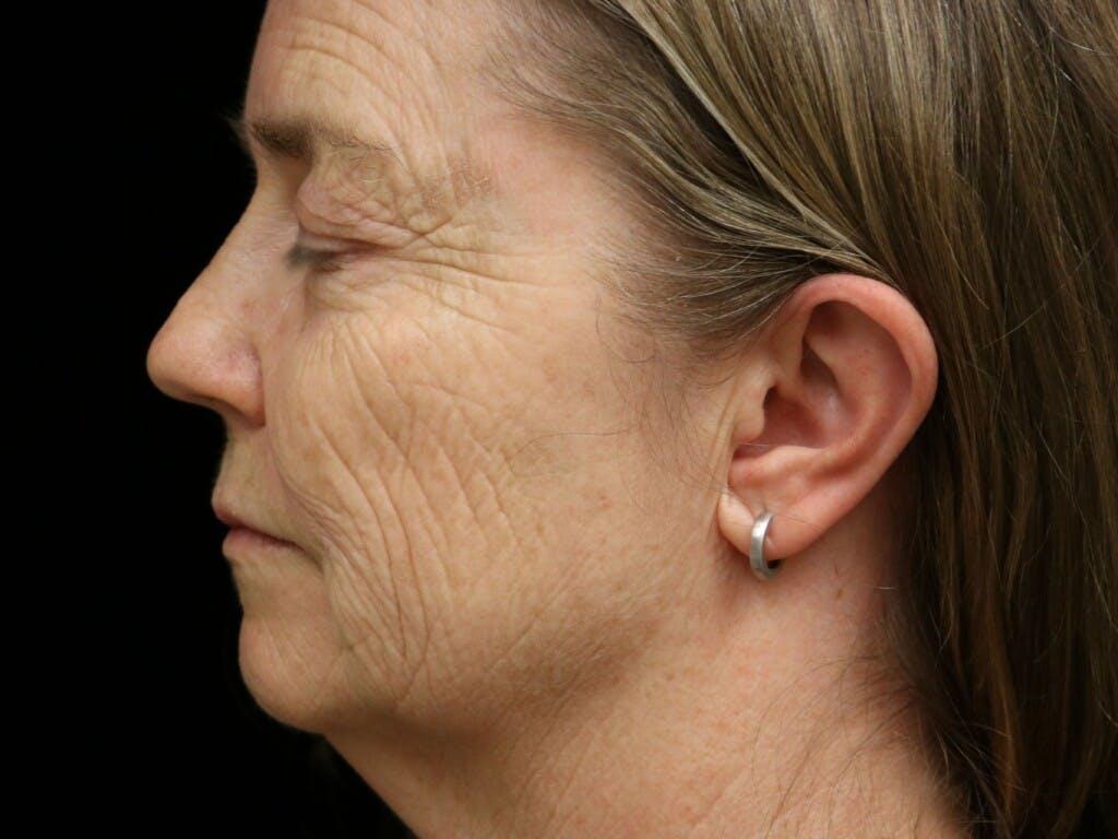 Facelift Gallery - Patient 39191265 - Image 9