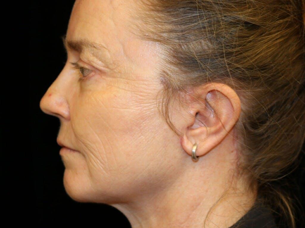 Facelift Gallery - Patient 39191265 - Image 10