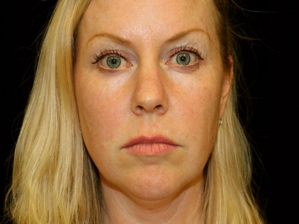 Facelift Gallery - Patient 39191297 - Image 1