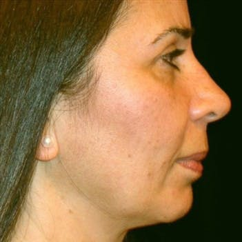 Chin Augmentation Gallery - Patient 39191302 - Image 1