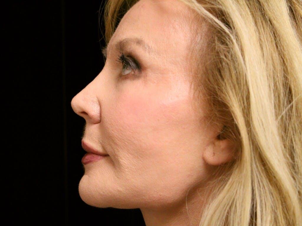 Facelift Gallery - Patient 39191303 - Image 4