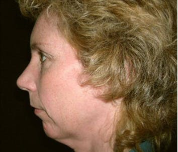 Chin Augmentation Gallery - Patient 39191304 - Image 1