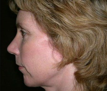Chin Augmentation Gallery - Patient 39191304 - Image 2