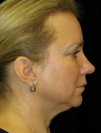 Chin Augmentation Gallery - Patient 39191320 - Image 1