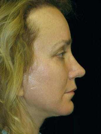 Chin Augmentation Gallery - Patient 39191320 - Image 2