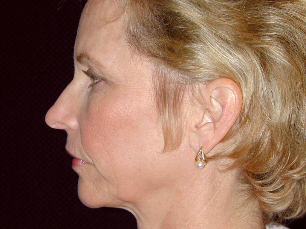 Facelift Gallery - Patient 39191327 - Image 7