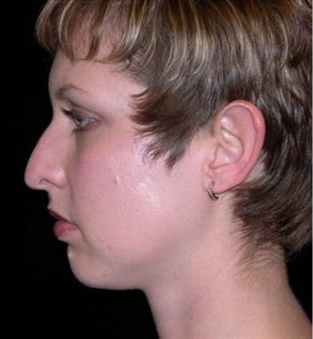 Chin Augmentation Gallery - Patient 39191321 - Image 1