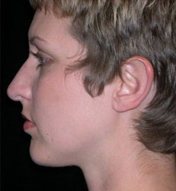 Chin Augmentation Gallery - Patient 39191321 - Image 2